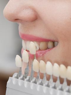 大阪 梅田の審美歯科でTHINK TOOTH(シンクトゥース)で美しく健康な歯を手に入れましょう。